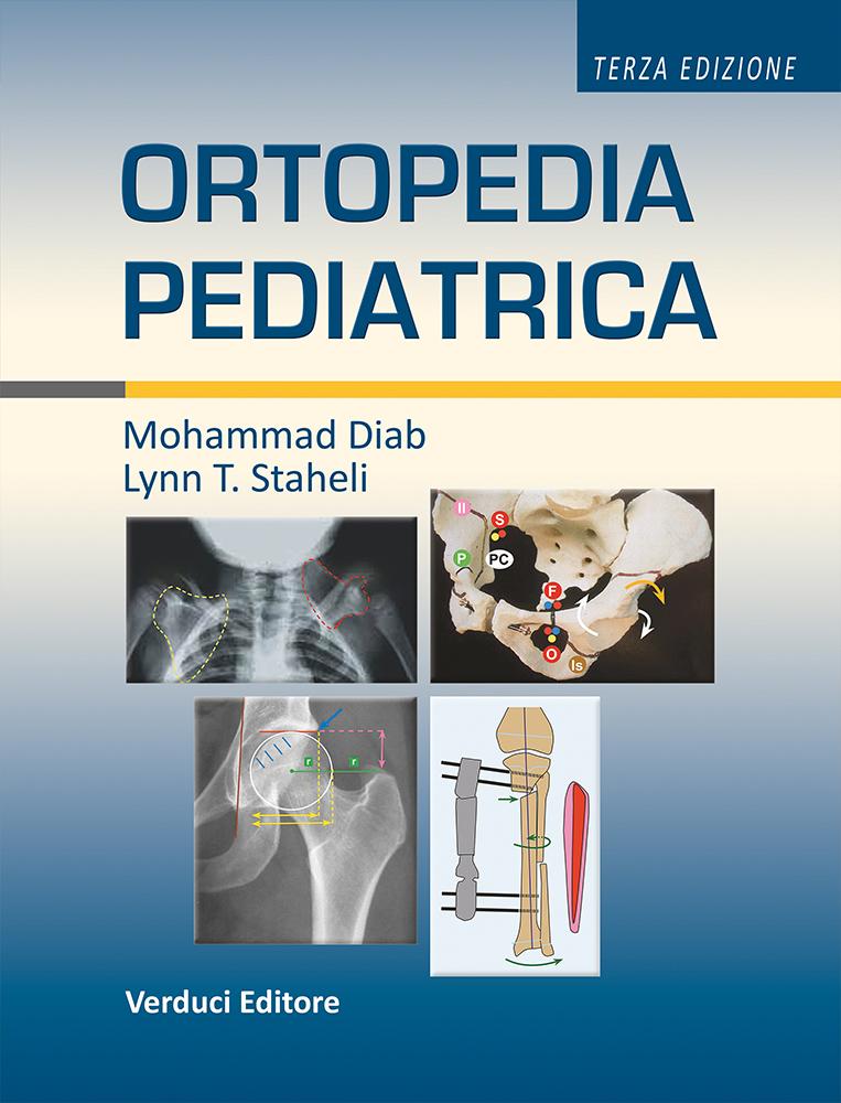 ortopedia pediatrica con elementi di diagnostica